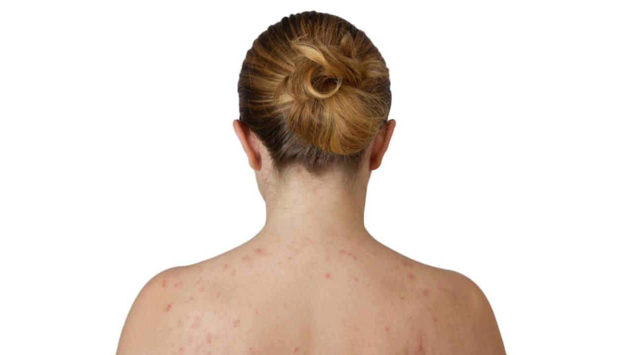 espalda con acne