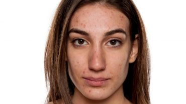 mujer adulta con acne en la cara
