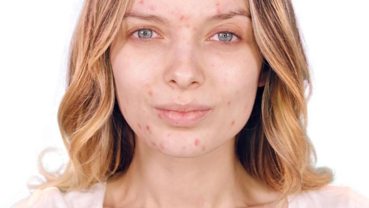 mujer adulta con manchas de acne