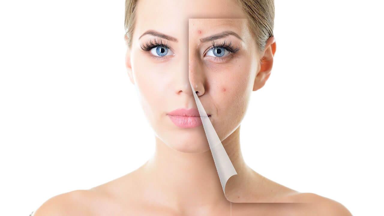 mujer con acne en la cara