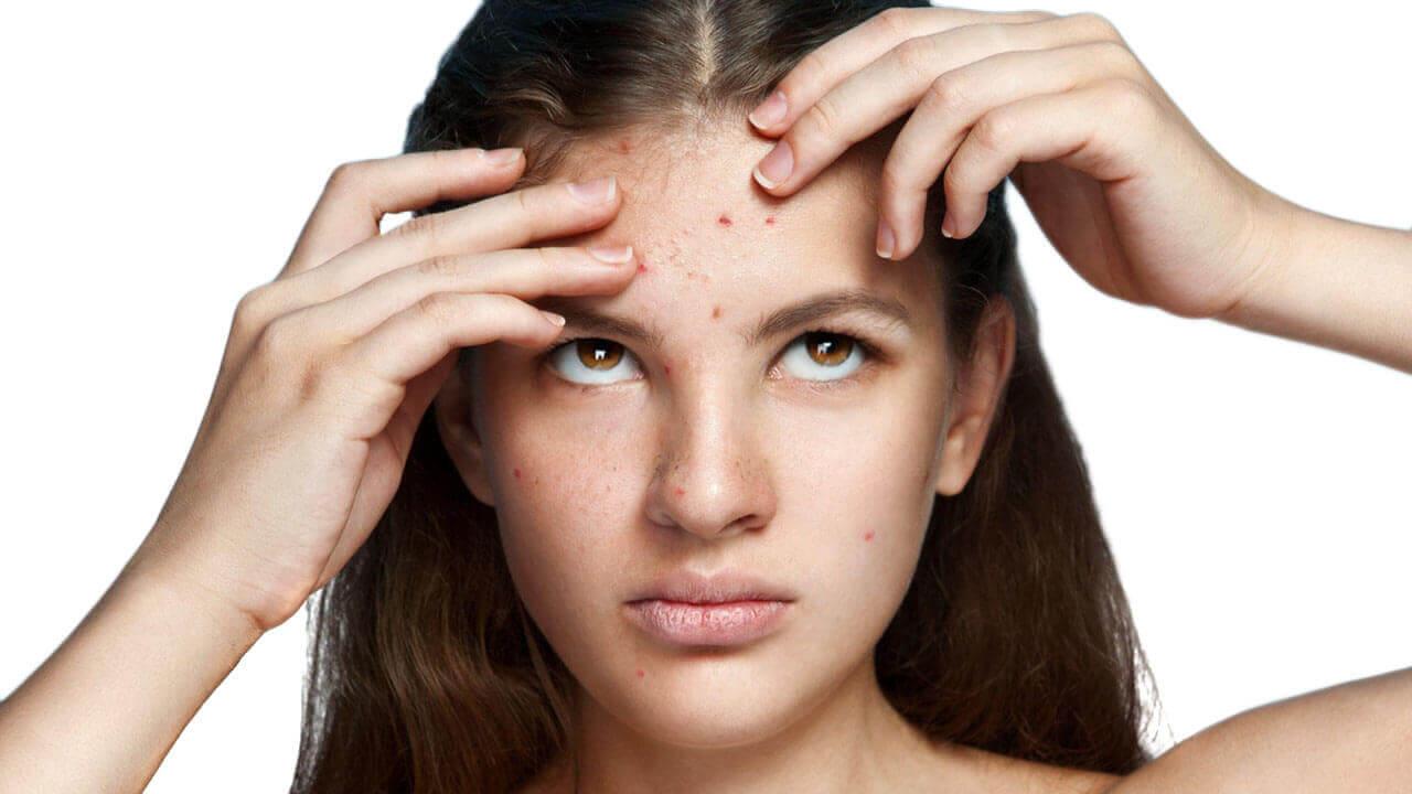 mujer con acne en la frente