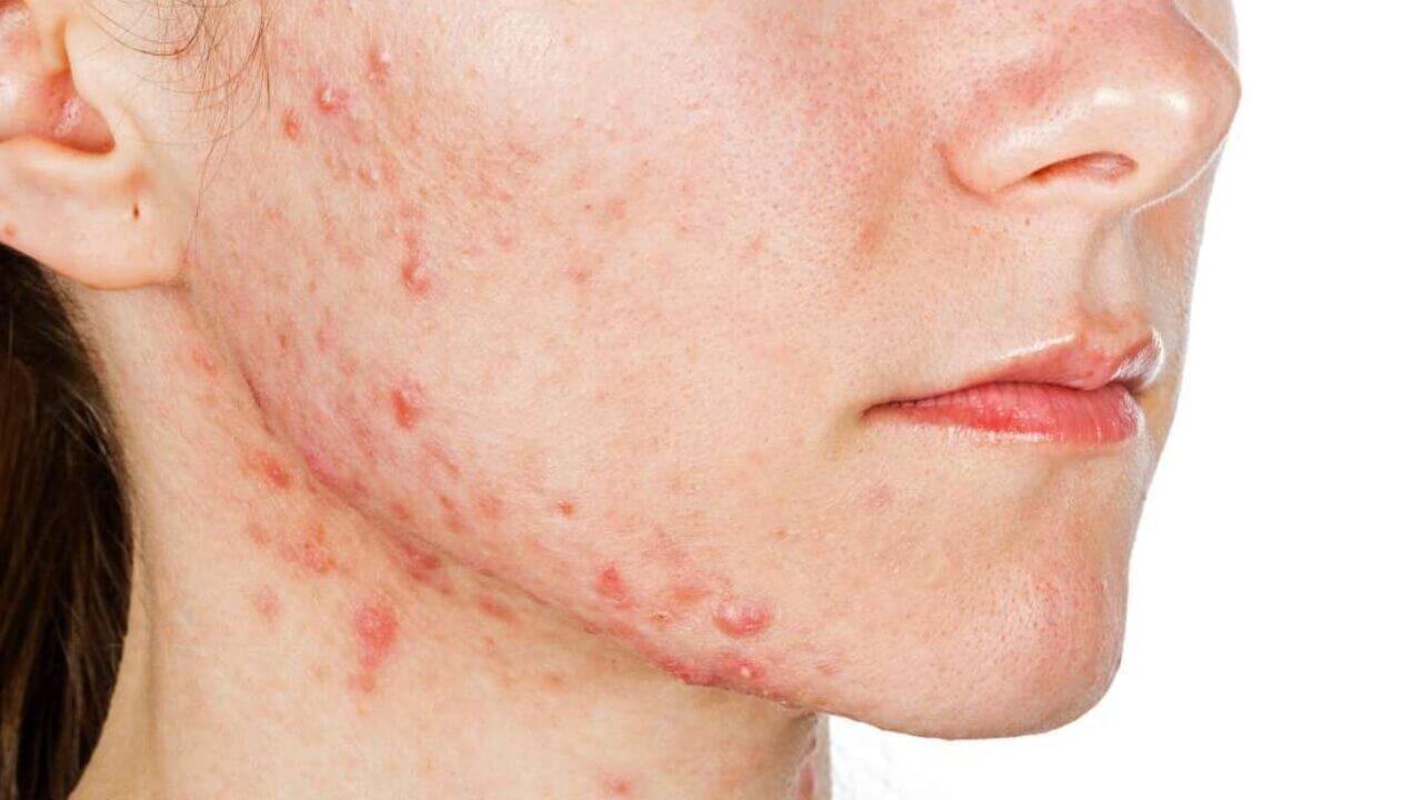 mujer con acne en la mandibula