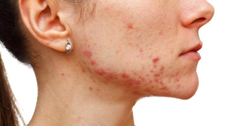 mujer con acne hormonal