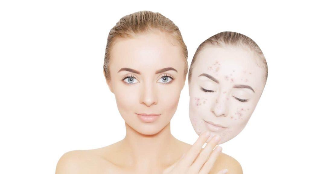 mujer sin acne en la cara