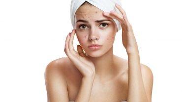 mujer triste con acne