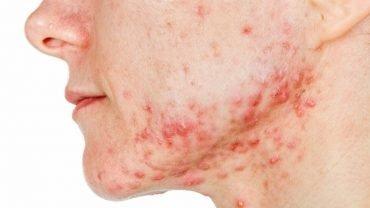 persona con acne severo